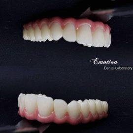 Emotion Dental Laboratory