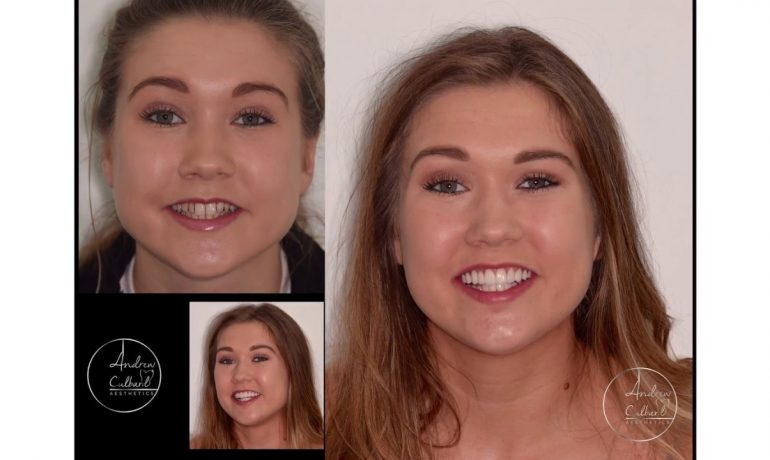 Cosmetic Dentistry Glasgow – Smile Makeover Veneers & Invisalign