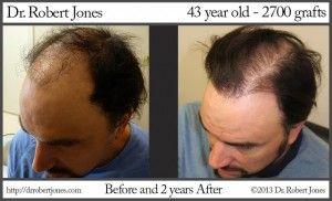 Fixing a Bad Hair Transplant