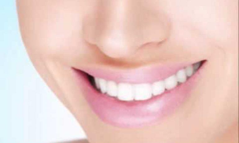 Noa Dental Clinic Dubai I Dentist Dubai I Multispeciality Dental Clinic in Dubai