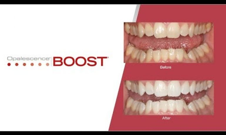 How Professional Teeth Whitening Is Done Fast with Opalescence Boost