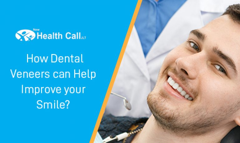 How Dental Veneers Improve your Smile?