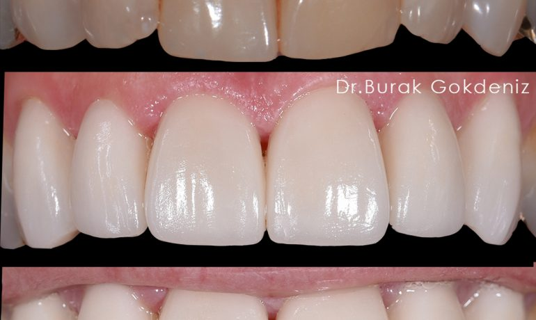 The Lifespan of Dental Veneers