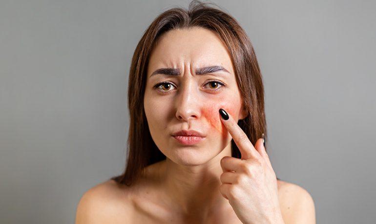 """Micro-Botox/Dysport"" for flushing, pore size, etc."