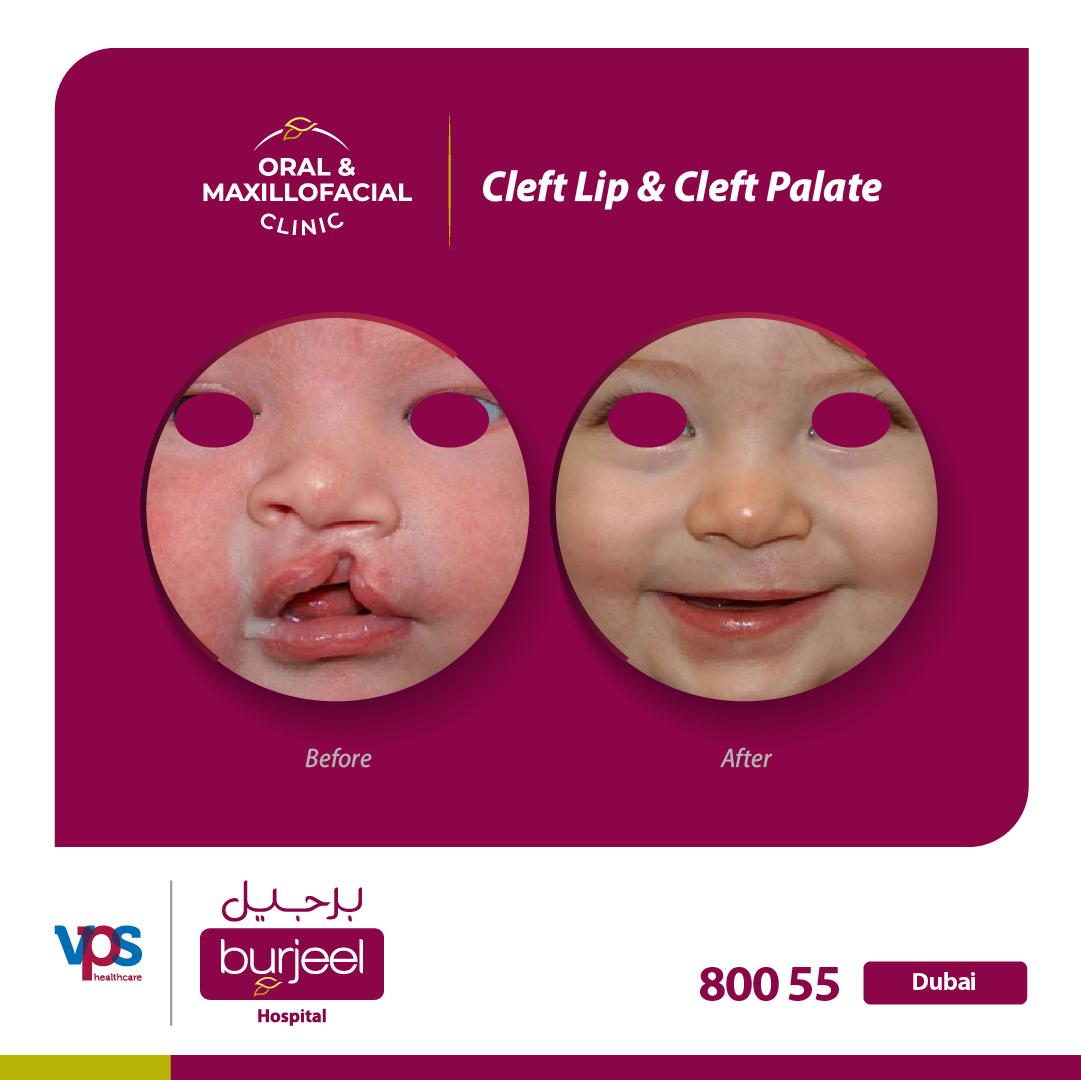 Burjeel Hospital for Advanced Surgery Dubai