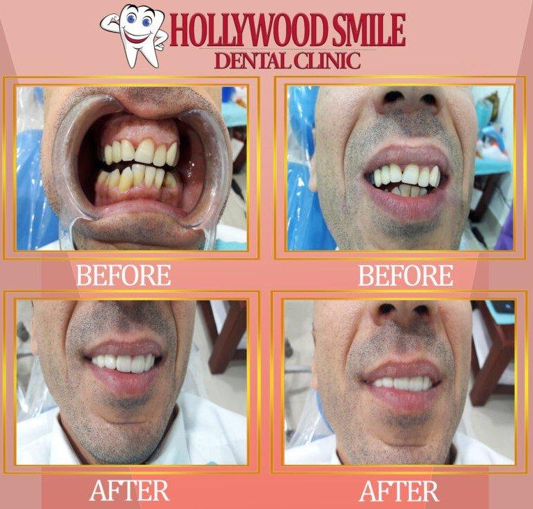 Hollywood Smile Dental Clinic