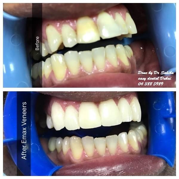 Easy Dental Clinic