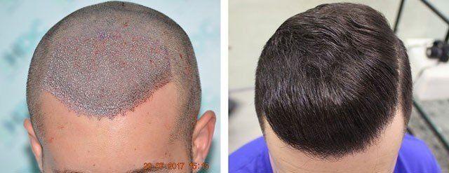 Dynamic Hair Transplant Dubai