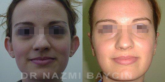 Nazmi Baycin Plastic Surgery