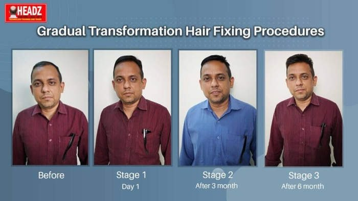 AL IBDA Hair Fixing Center (Headz Hair Fixing)