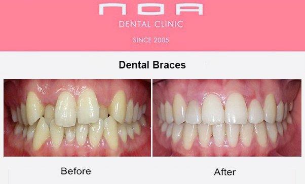NOA Dental Clinic Dubai