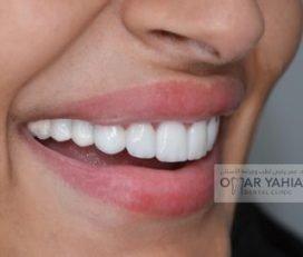 Omar Yahia Dental Surgery Clinic