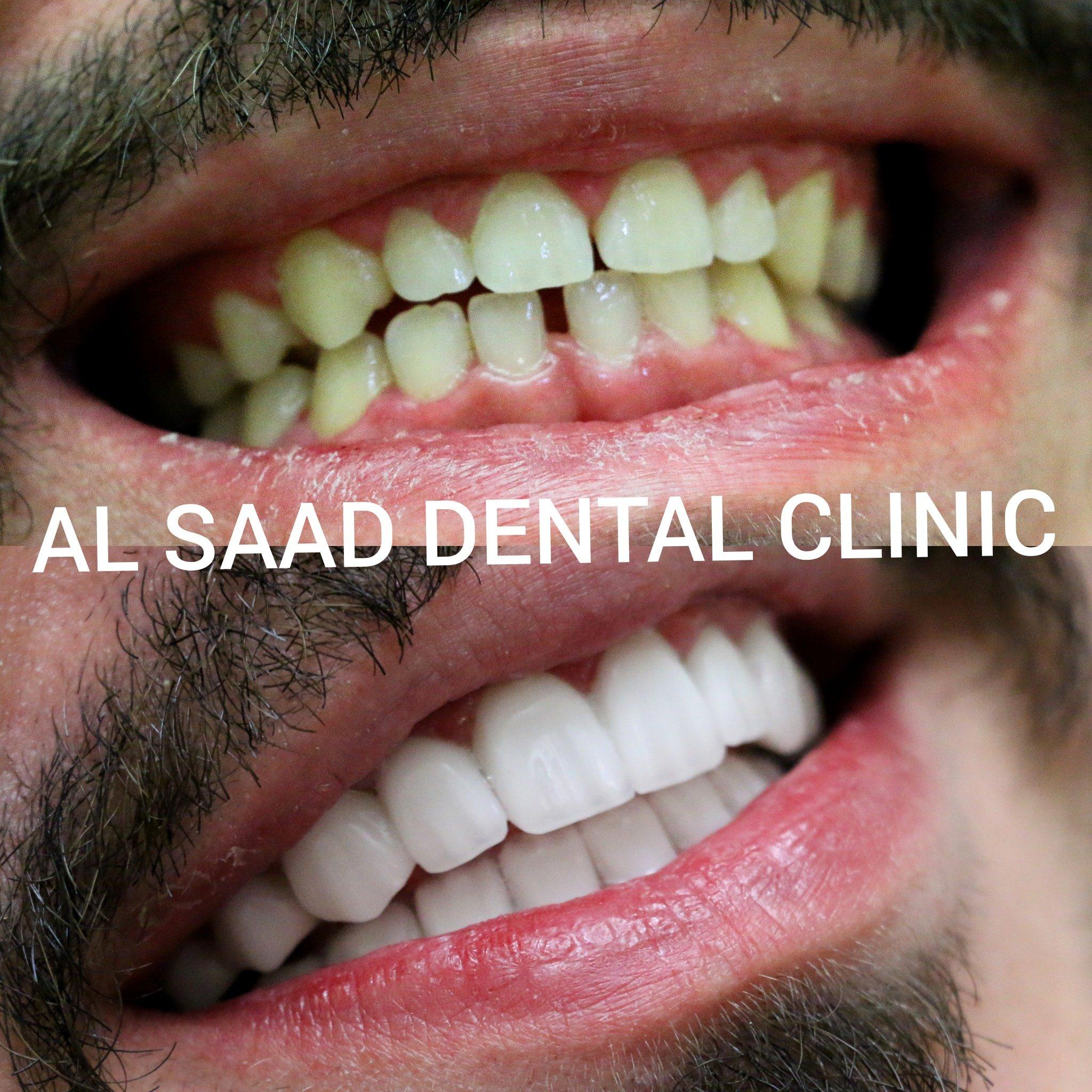 Al Saad Dental Clinic